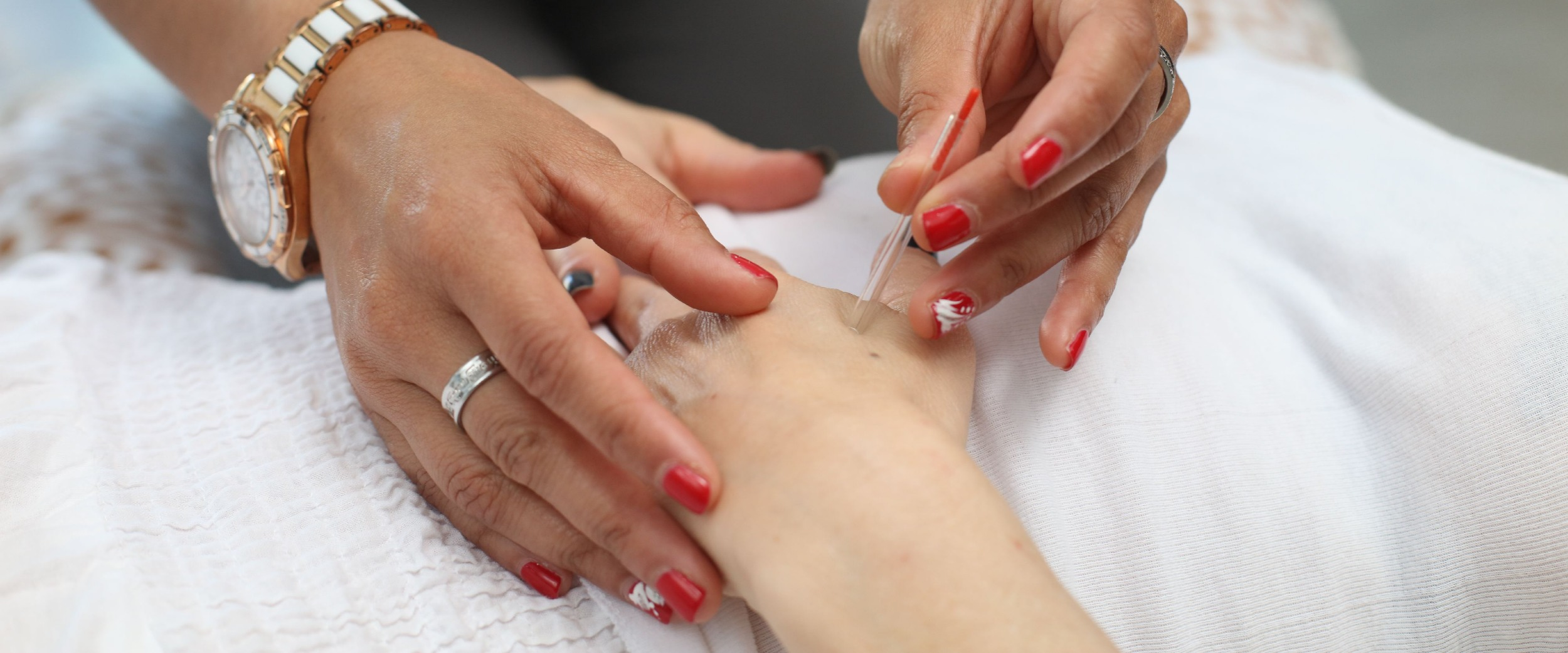 Using acupuncture for treating cancer treatment side effects