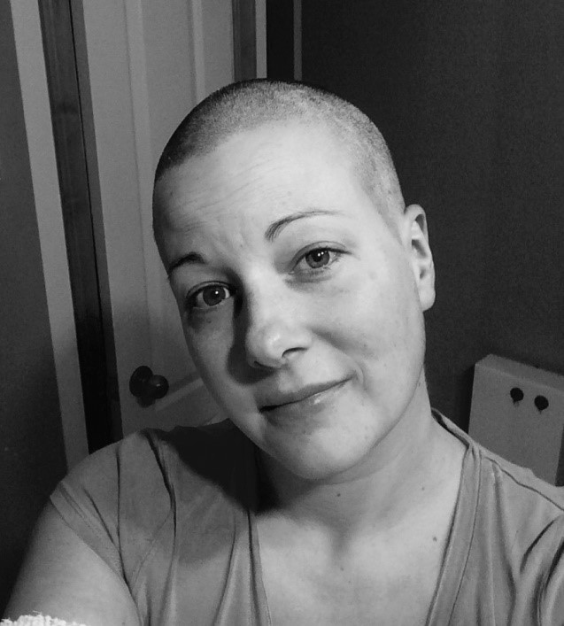 my inflammatory breast cancer story our voices blog cbcn