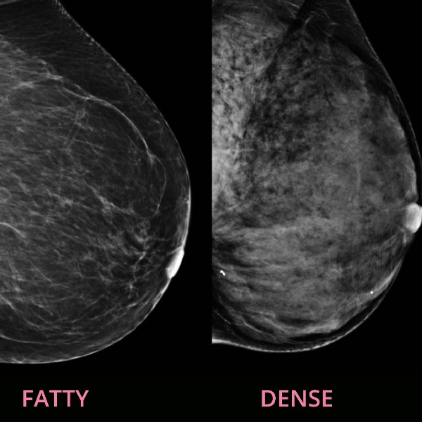 What is Breast Density and Why Does It Matter?